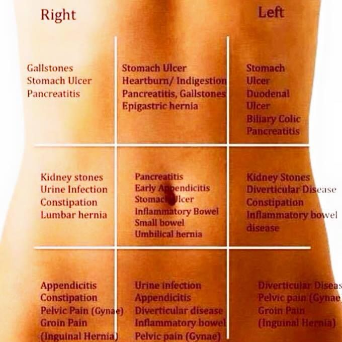 Stomach pain chart which helps you to guess whats going on