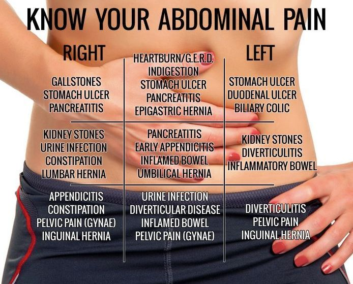 Yet Another Stomach pain chart to understand what your pain tells you